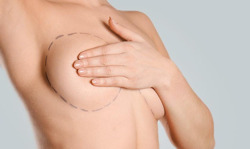 bruststraffung brust schoenheitsklinik proaesthetic uebersicht
