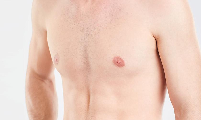 gynaekomastie brust schoenheitsklinik proaesthetic uebersicht