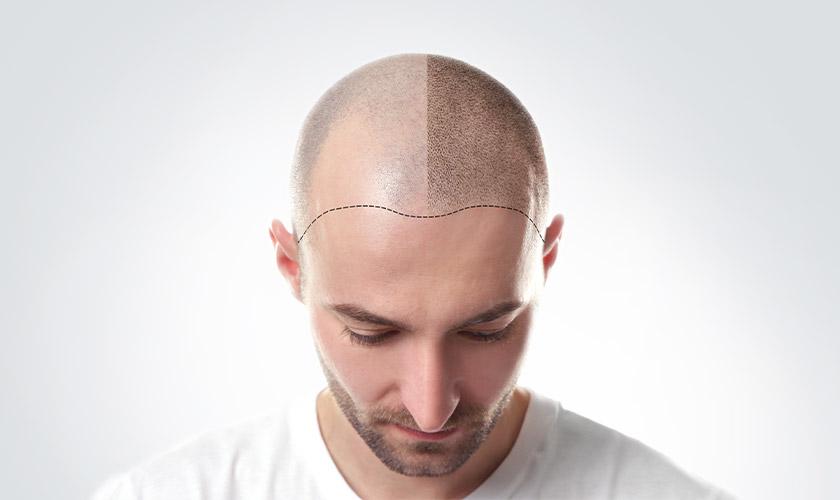 haarpigmentierung schoenheitsklinik proaesthetic uebersicht