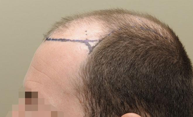haartransplantation vorher nacher bilder 1 vorher
