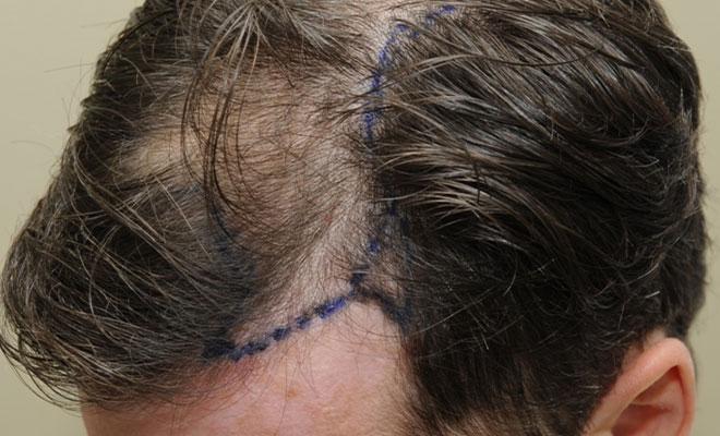haartransplantation vorher nacher bilder 3 vorher
