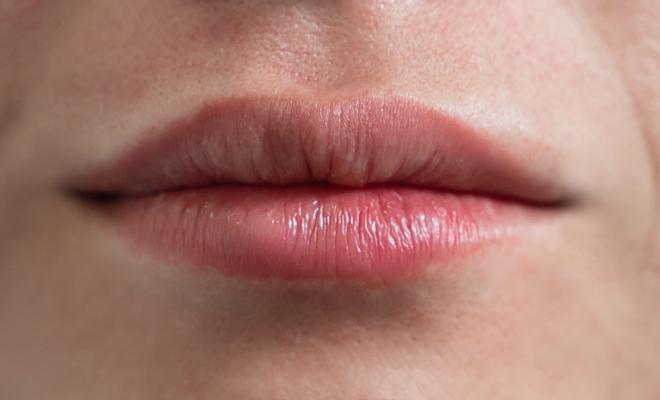 lippenvergroesserung proaesthetic gruppe1 nachher