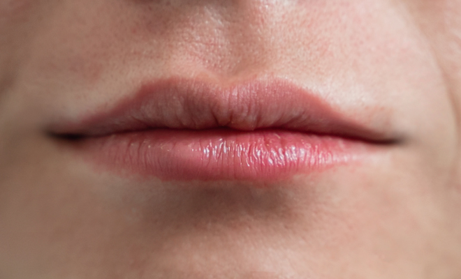 lippenvergroesserung proaesthetic gruppe1 vorher