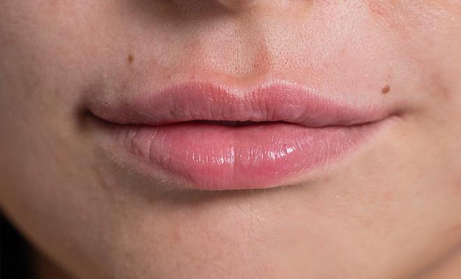 lippenvergroesserung proaesthetic gruppe3 vorher