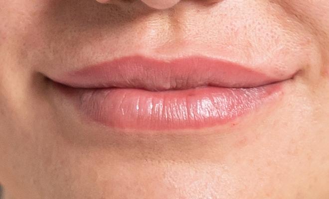 lippenvergroesserung proaesthetic gruppe5 nachher