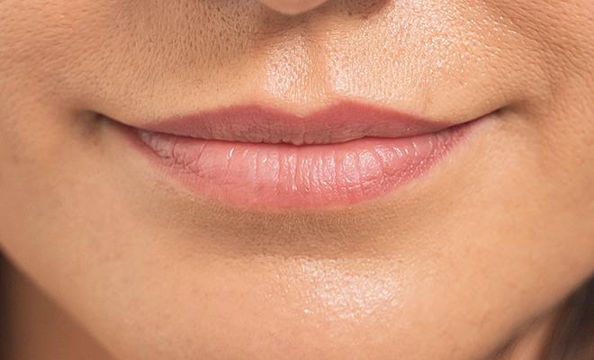 lippenvergroesserung proaesthetic gruppe5 vorher