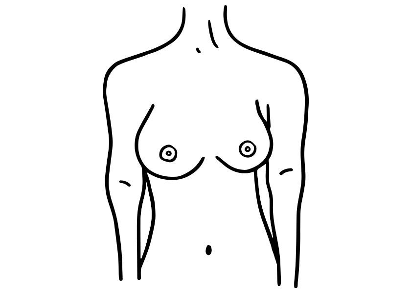 brustform asymmetrische brust proaesthetic brustvergroesserung