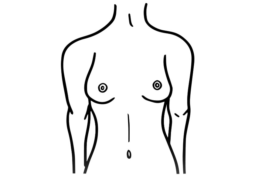 brustform athletische brust proaesthetic brustvergroesserung