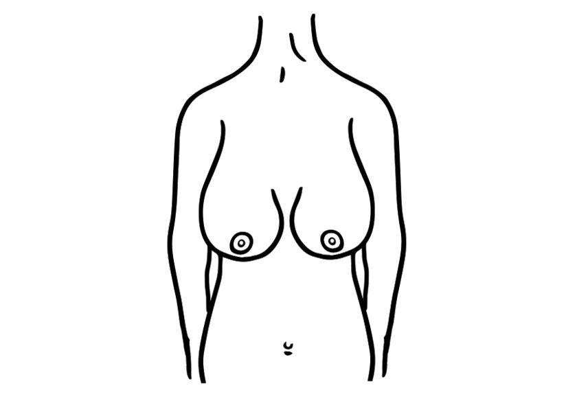brustform entspannte brust proaesthetic brustvergroesserung
