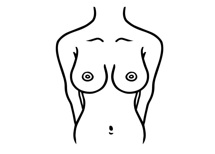 brustform glockenfoermige brust proaesthetic brustvergroesserung