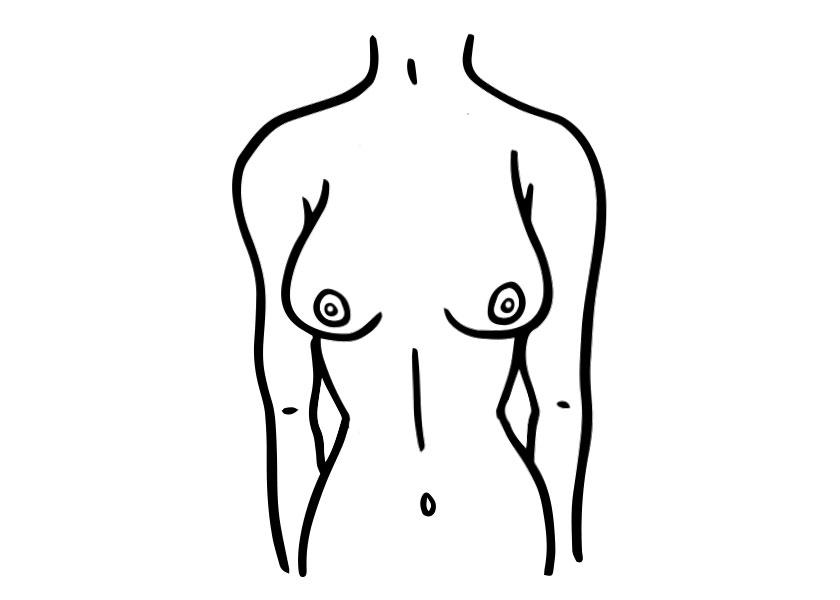 brustform schmale brust proaesthetic brustvergroesserung