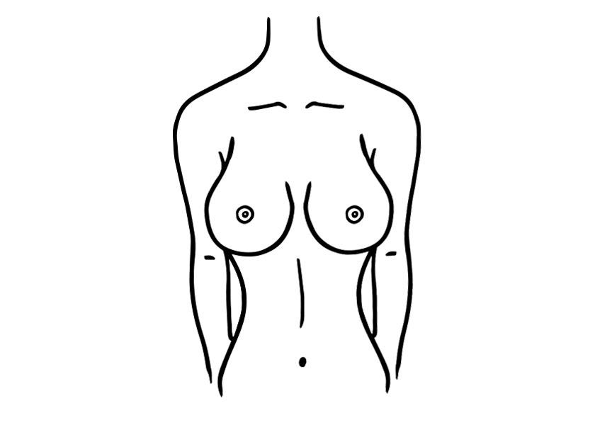 brustform tropfenfoermige brust proaesthetic brustvergroesserung