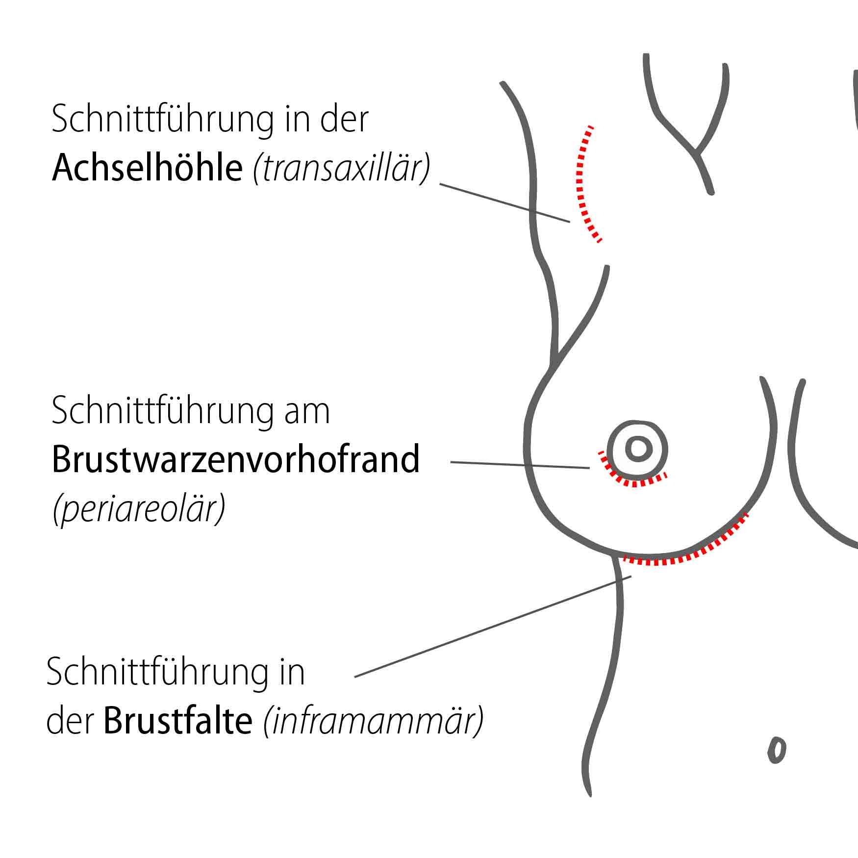 brustvergroesserung schnitte transaxillaer periareolaer inframammaer 01