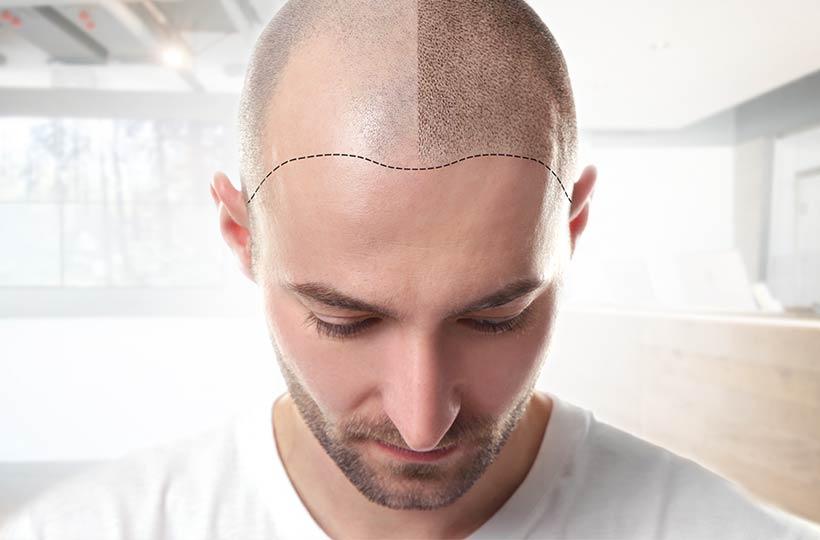 proaesthetic heidelberg schoenheitsklinik rechner haarpigmentierung