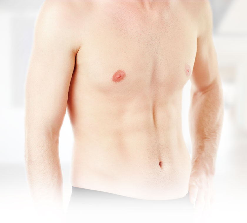 Brustwachstum weibliche hormone mann für beim Diese Medikamente