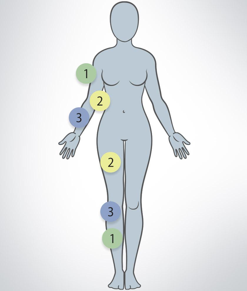 lipoedem symptome